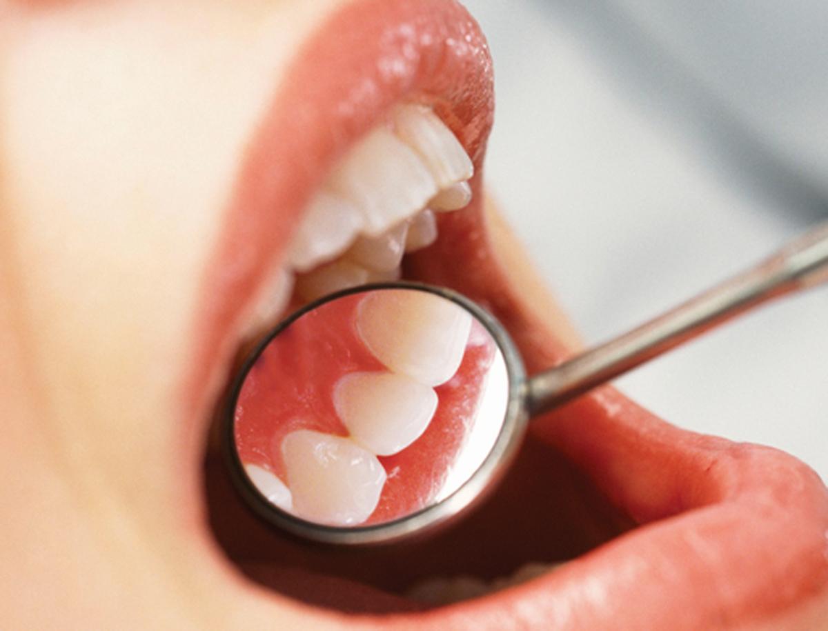 Чистка зубов ломоносовская